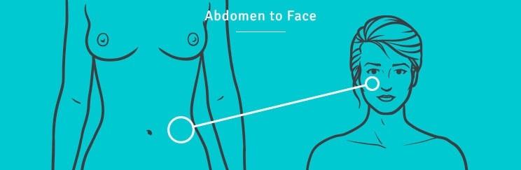 http://thefatexperts.com/wp-content/uploads/2015/01/abdomen_face_fat_transfer-744x243.jpg