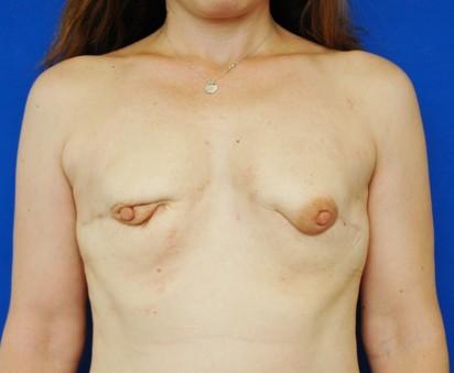 http://thefatexperts.com/wp-content/uploads/2015/01/karen_puregraft_breastcancer-412x339.jpg