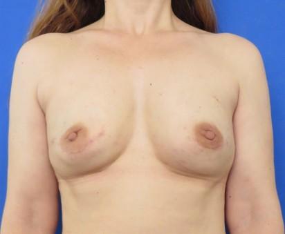 http://thefatexperts.com/wp-content/uploads/2015/01/karen_puregraft_breastcancer_reconstruction-412x339.jpg