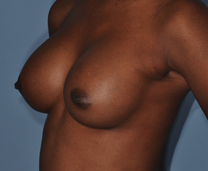 http://thefatexperts.com/wp-content/uploads/2015/03/breast_augmentation-412x339.png