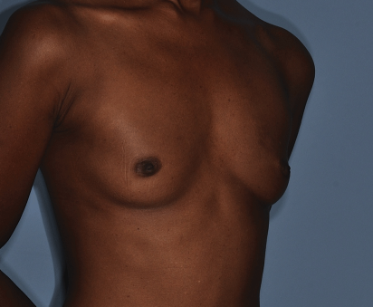 http://thefatexperts.com/wp-content/uploads/2015/03/breast_augmentation_before-412x339.png