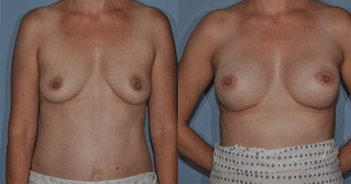 http://thefatexperts.com/wp-content/uploads/2015/03/breast_reconstruction_puregraft-1193x626.png