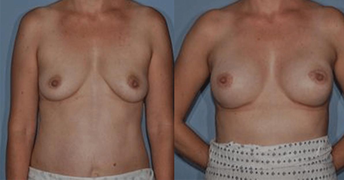 https://thefatexperts.com/wp-content/uploads/2015/03/breast_reconstruction_puregraft-1193x626.png