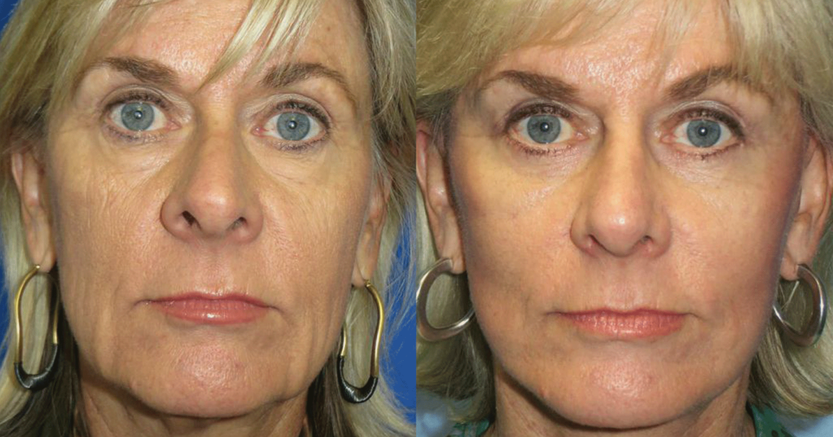 http://thefatexperts.com/wp-content/uploads/2015/03/facial_rejunevation-1193x626.png
